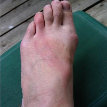 15 minutes after the single wasp sting on the very red toe. It got a lot worse!